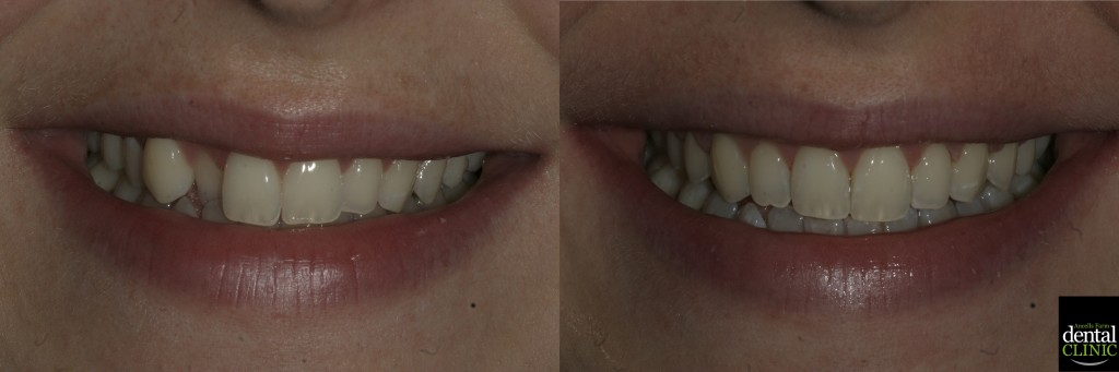 Fixed braces to align upper front teeth in under six months.