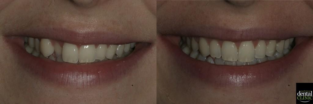 6-month-smiles-1024x341