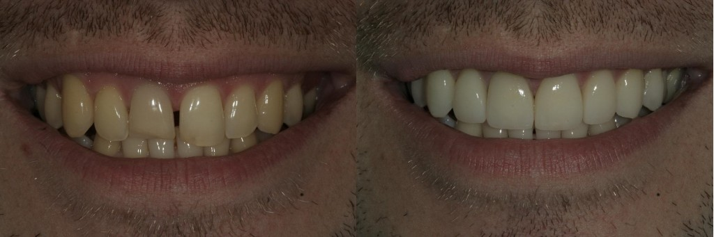 Whitening and four porcelain veneers.