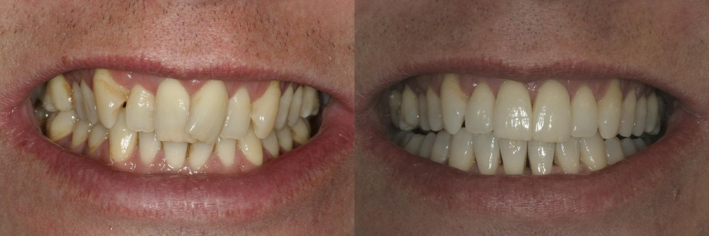 Invisalign braces to align the upper and lower teeth.