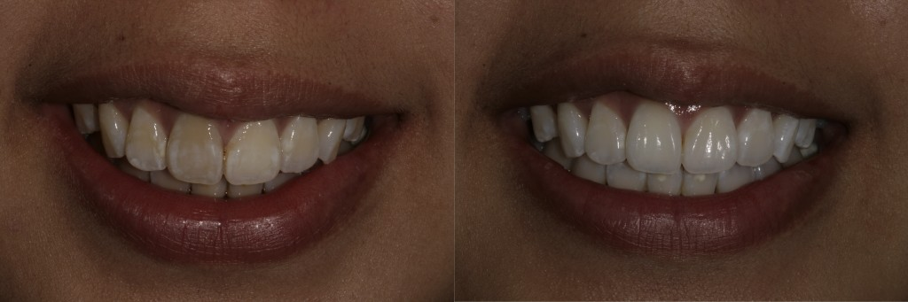 Home whitening, including internal bleaching of single dark, dead tooth.