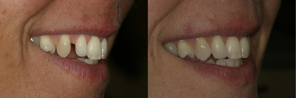 Composite bonding to close spaces and improve proportions of teeth.