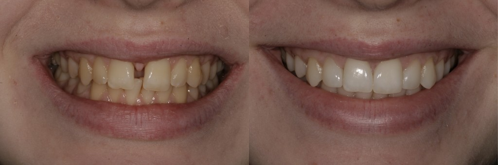 Fixed braces, composite bonding and whitening.