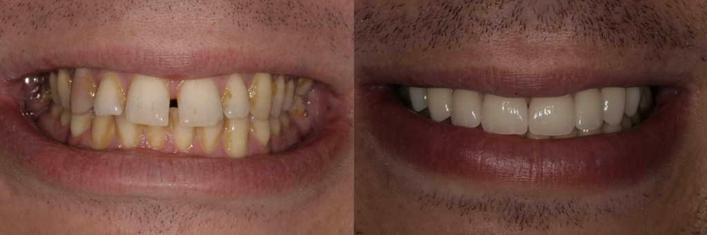 Porcelain veneers placed on eight upper teeth to close spaces and      improve proportions of smile.